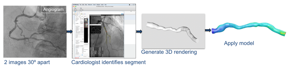 Steps in the development of a model of an artery in which blood flow can be investigated using Computational Fluid Dynamics
